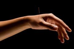 Acupunctura Imagens de Stock