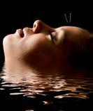 Acupunctura Fotos de Stock