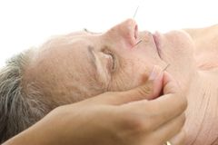Acupuncture Stock Photos