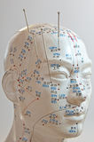 Acupuncture royalty free stock photography