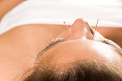 Acupuncture Royalty Free Stock Photos