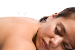 Acupuncture. Woman getting an acupuncture treatment in a spa Stock Photography