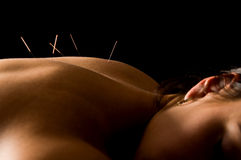 Acupuncture. Woman getting an acupuncture treatment in a spa stock photo