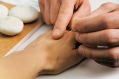 Acupuncture.Chinese medicine treatmen Royalty Free Stock Photography