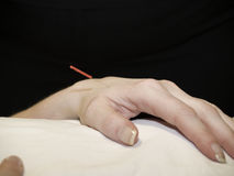 Acupuncture Concept Stock Image