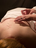 Acupuncture Concept Stock Images