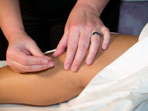 Acupuncture Concept Royalty Free Stock Image