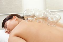Acupuncture Cupping Treatment. Woman with acupuncture cupping treatmant on back Royalty Free Stock Image
