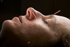 Acupuncture face. Female acupuncture patient receiving treatment to face Stock Images