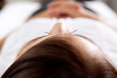 Acupuncture Facial Treatment Detail. Macro detail of three needles in face of acupuncture patient Stock Images