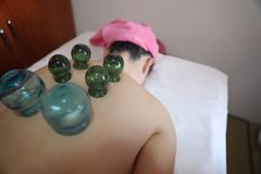 Detail of Woman with Acupuncture Cupping Treatment. Acupuncture Fire cupping detail on woman`s back Royalty Free Stock Photos