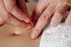 Acupuncture hands Stock Images