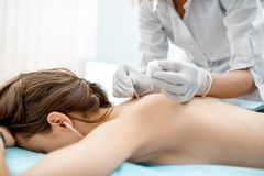Acupuncture medical treatment. Close-up of the acupuncture medical treatment with special needles stock images