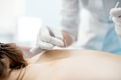 Acupuncture medical treatment royalty free stock image