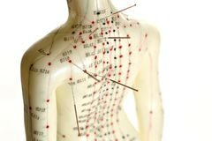 Acupuncture model. Female acupuncture model with needles in the shoulder Stock Photo