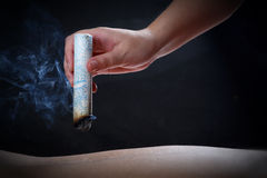 Acupuncture and moxibustion--a traditional chinese medicine method. Acupuncture and moxibustion is a traditional chinese medicine method or therapy, it is a form Stock Photography