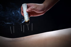 Acupuncture and moxibustion--a traditional chinese medicine method. Acupuncture and moxibustion is a traditional chinese medicine method or therapy, it is a form Stock Photo