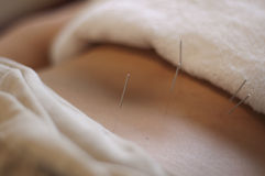 Acupuncture Needle Royalty Free Stock Photos