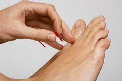 Acupuncture needle applied to foot Royalty Free Stock Photo