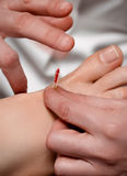 Acupuncture needle being tapped into foot Stock Photo
