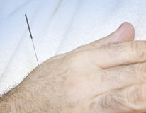 Acupuncture needle in hand Royalty Free Stock Images