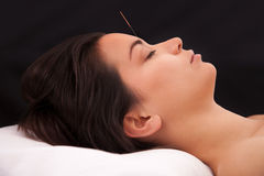 Acupuncture needle in the head. On black background Stock Images