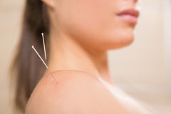 Acupuncture needle pricking on woman shoulder Stock Image