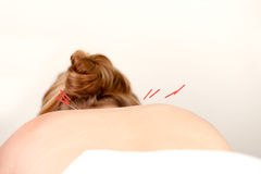 Acupuncture Needles on Back. Female patient with acupuncture needles along the Shu Points on the back Stock Photography