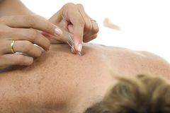 Acupuncture Needles in backs. Acupuncture - Application of needles in the backs royalty free stock images