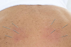 Acupuncture Needles in backs. Acupuncture - Application of needles in the backs stock photo
