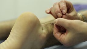 Acupuncture Needles Setting Up HD