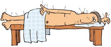 Acupuncture Patient Stock Photo