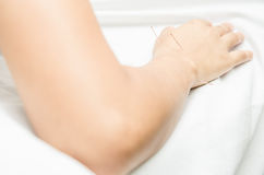 Acupuncture patient with needles along arm Stock Photos