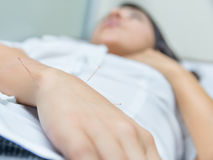 Acupuncture patient with needles along arm Stock Photography