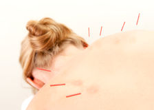 Acupuncture Patient Treatment in Back Stock Image