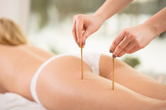 Acupuncture points. Therapist pressing acupuncture points on young woman's leg Stock Photos