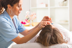 Acupuncture therapist applying acupuncture needle Stock Image