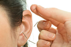 Acupuncture. Therapy on auricle, horizontal very close up photo Royalty Free Stock Photography