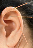 Acupuncture. Therapy on auricle, vertical very close up photo Royalty Free Stock Photos
