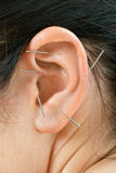 Acupuncture. Therapy on auricle, vertical very close up photo Stock Photo