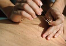 acupuncture Treatmen da medicina chinesa fotos de stock