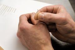 acupuncture Treatmen da medicina chinesa imagens de stock