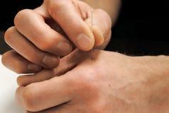 acupuncture Treatmen da medicina chinesa Foto de Stock Royalty Free