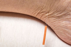 Acupuncture treatment on leg Stock Photography