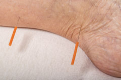Acupuncture treatment on leg Stock Images