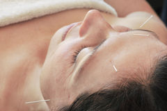 Acupuncture treatment, needles in forehead Royalty Free Stock Photo