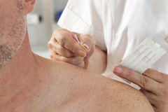 Acupuncture treatment Royalty Free Stock Photography