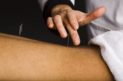 Acupuncture treatment to male back Royalty Free Stock Photography