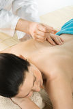 Acupuncture Stock Photography