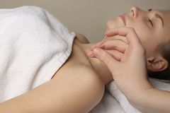 Acupuncture on woman`s shoulder,. Closeup Royalty Free Stock Photography